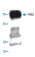 PAB8730 - FRS2