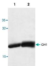 PAB8741 - Somatotropin / Growth Hormone / GH1