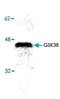 PAB8743 - GSK3 beta