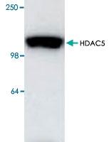 PAB8752 - HDAC5