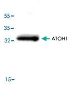 PAB8819 - ATOH1