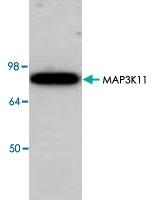 PAB8841 - MAP3K11