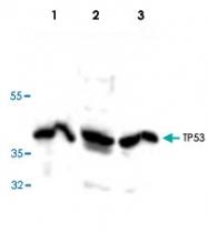 PAB8884 - TP53 / p53