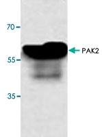 PAB8890 - PAK2