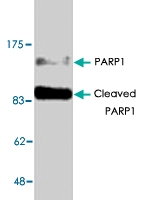 PAB8894 - PARP1