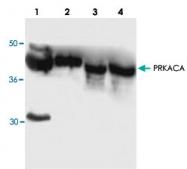 PAB8919 - PRKACA