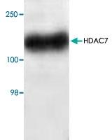 PAB8928 - HDAC7