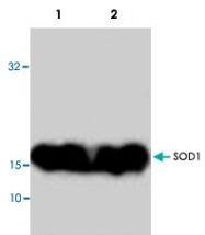 PAB9030 - Superoxide Dismutase 1 / SOD1
