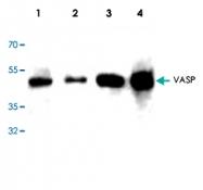 PAB9068 - VASP