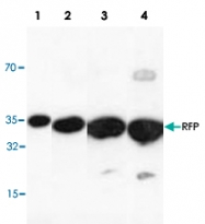 PAB9104 - RFP-Tag