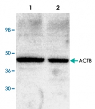 PAB9123 - Actin beta / ACTB