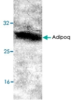 PAB9127 - Adiponectin