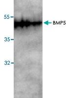 PAB9484 - BMP5