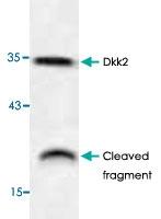 PAB9511 - Dickkopf-2 (DKK2)