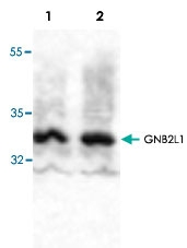 PAB9521 - GNB2L1 / HLC7