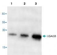 PAB9547 - Galectin-3
