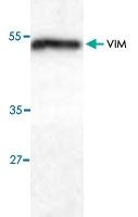 PAB9580 - Vimentin