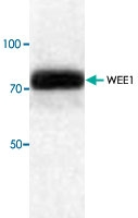 PAB9581 - WEE1 / Wee1-like protein kinase