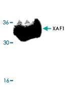 PAB9586 - XAF1