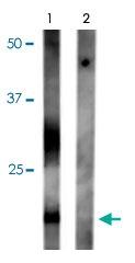 PAB9646 - Aquaporin-2 / AQP2