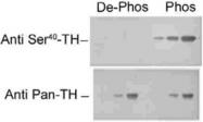 PAB9653 - Tyrosine 3-monooxygenase (TH)