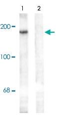 PAB9672 - NMDAR2B
