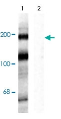 PAB9673 - NMDAR2B