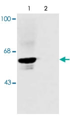 PAB9701 - Glycine receptor alpha-1