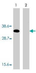 PAB9858 - Deoxyribonuclease-2-alpha