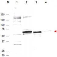 PAB9932 - AKT1 / PKB