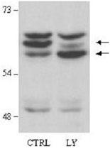 PAB9933 - AKT2 / PKB beta