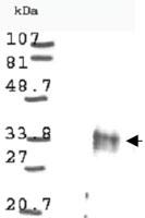 PAB9944 - Cyclin D1
