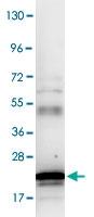PAB9953 - Interleukin-6 / IL6