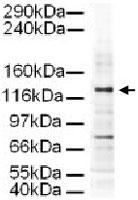 PAB9965 - AP3 complex subunit delta-1 / AP3D1