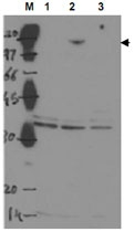 PAB9975 - TP53BP2