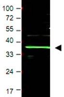 PAB9982 - BMI-1 / RNF51