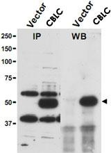 PAB9985 - CBLC / RNF57