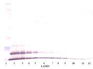 PP1014P1 - CXCL3 / MIP2B