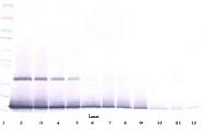 PP1019P1 - IFNG / Interferon gamma