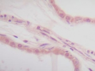 PP1022P1 - Interleukin-1 alpha / IL-1A