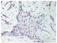 PP1063P1 - Platelet factor 4 / PF4