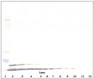 PP1082P1 - CXCL2 / MIP2A