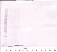 PP1217P1 - CXCL12 / SDF1