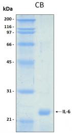 PRO-50061-0025 - Interleukin-6 / IL6