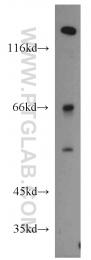 14181-1-AP - Alpha-1B-glycoprotein / A1BG