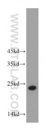 20952-1-AP - ABHD14B