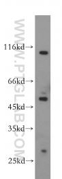 14039-1-AP - ABHD2 / LABH2