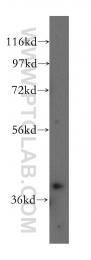 12201-1-AP - ABHD5