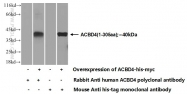 20941-1-AP - ACBD4
