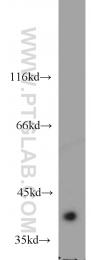 15972-1-AP - ACOT7 / BACH
